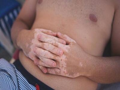 腹部哪些症状会是白癜风