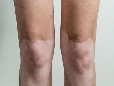 腿部哪些白斑留意是白癜风