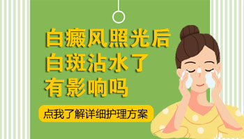 泛发型白癜风病发脸上用什么方法治