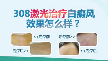 寻常型白癜风病发腿上吃什么药比较好
