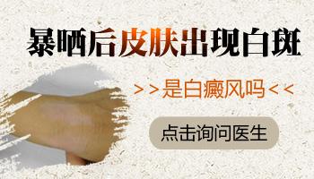 白癜风泛发型一大片白做什么治疗见效快无危害