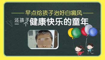 孩子脸上白癜风轻度早期症状图片